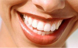 smile-assessment-quiz