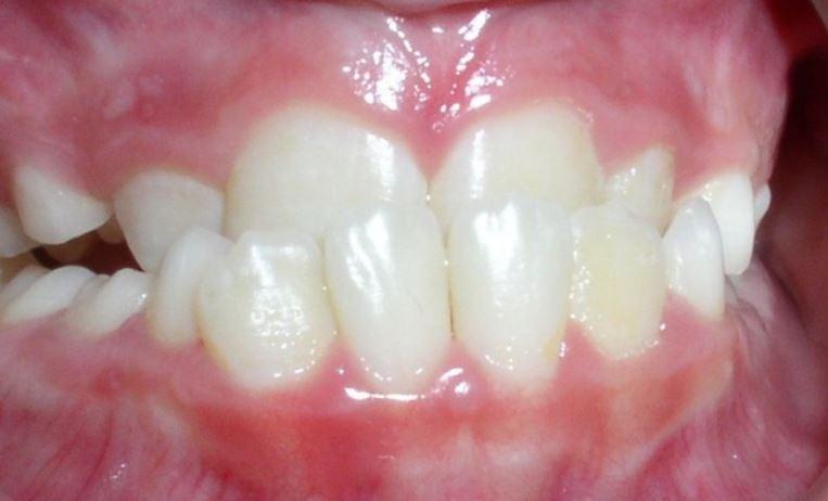 underbite-clear-alginer-treatment