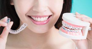 clear-aligners-versus-braces
