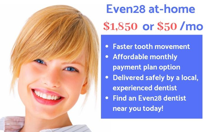 Even28-at-home-clear-aligner-price