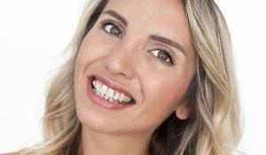 clear-braces-braces-adults