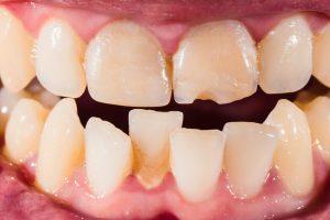 benefits-clear-braces-braces-adults