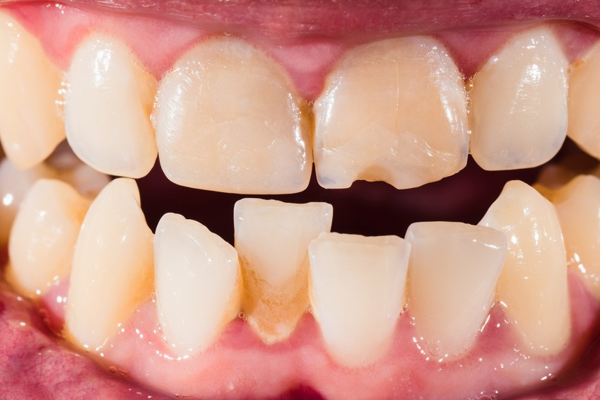 benefits-clear-braces-braces-adults