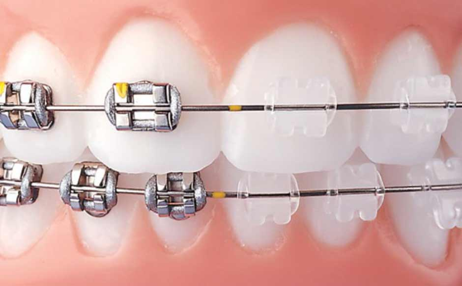 best-age-comprehensive-orthodontic-treatment