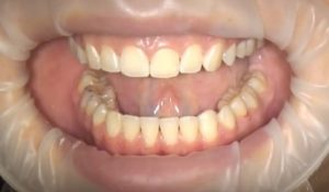 clear-aligner-final-results