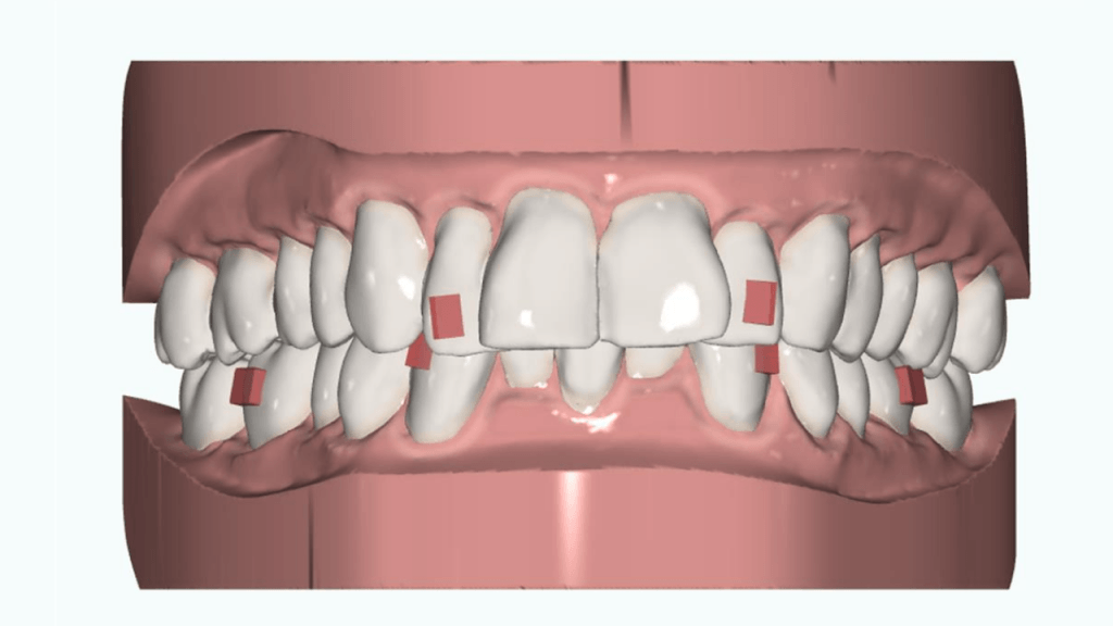 clear-aligner-treatment-planning