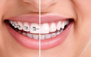 clear-aligners-versus-braces-adults