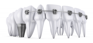 Dental-conditions-affecting-braces-clear-aligners