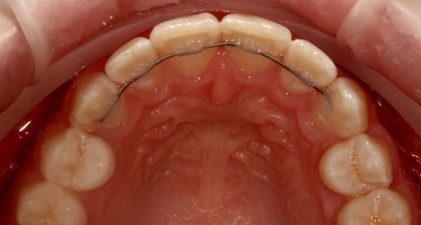 smile-direct-club-risk-orthodontic-relapse