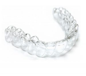 at-home-clear-aligner