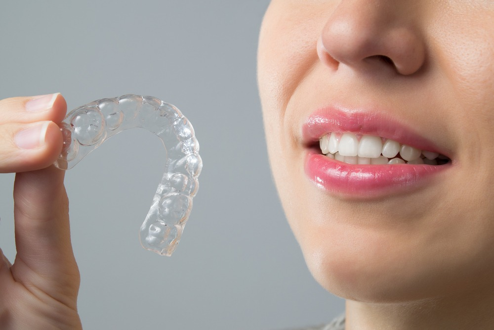 clear-aligners-good-candidate