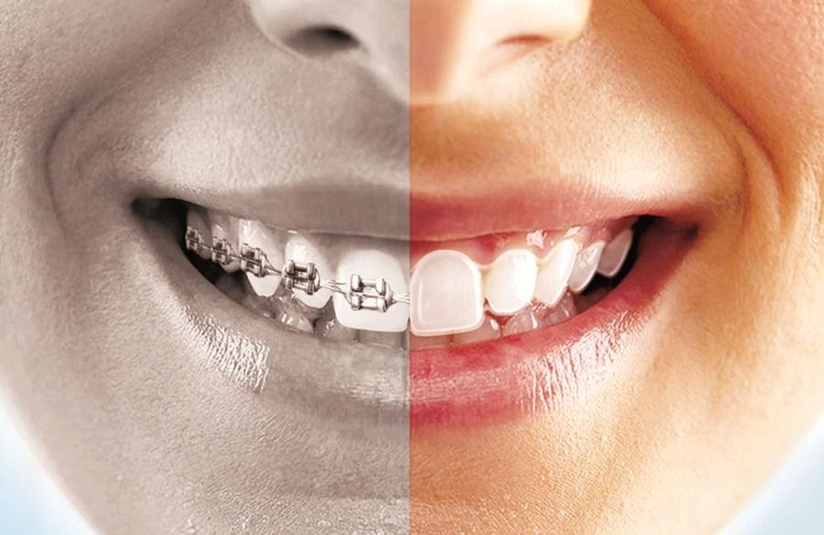 benefits-clear-aligners
