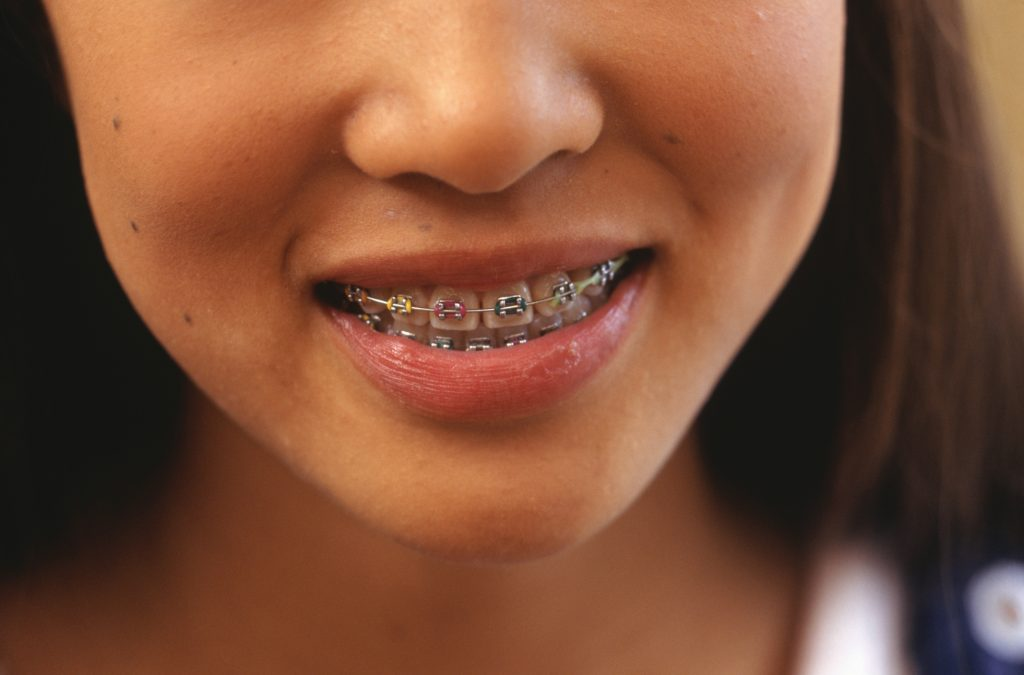 clear-aligners-more-comfortable