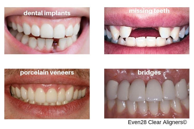 contraindications-at-home-clear-aligner-treatment