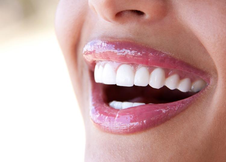 best-dentist-delivered-teeth-straightening-system