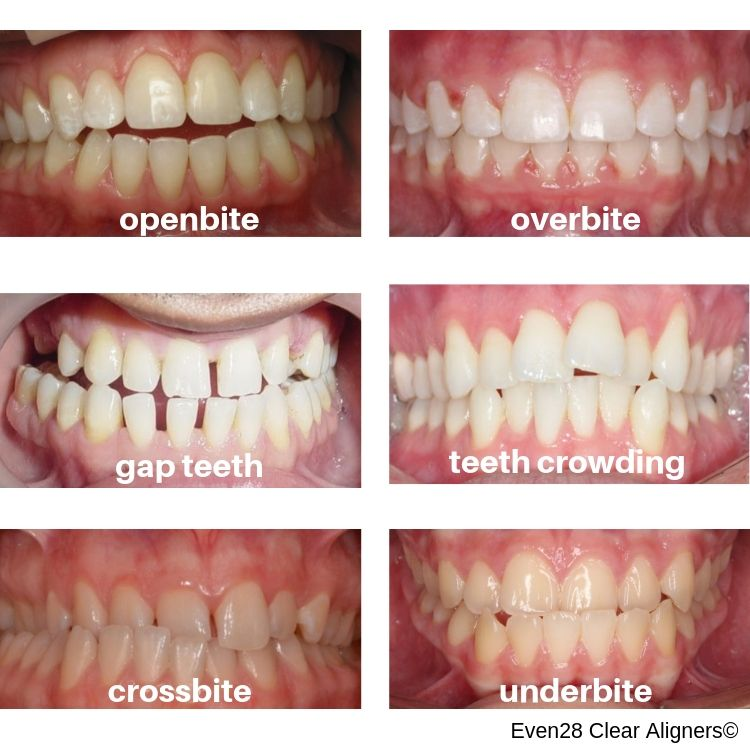 different-orthodontic-conditions