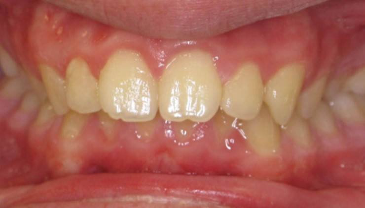 execessive-overbite-deepbite-braces