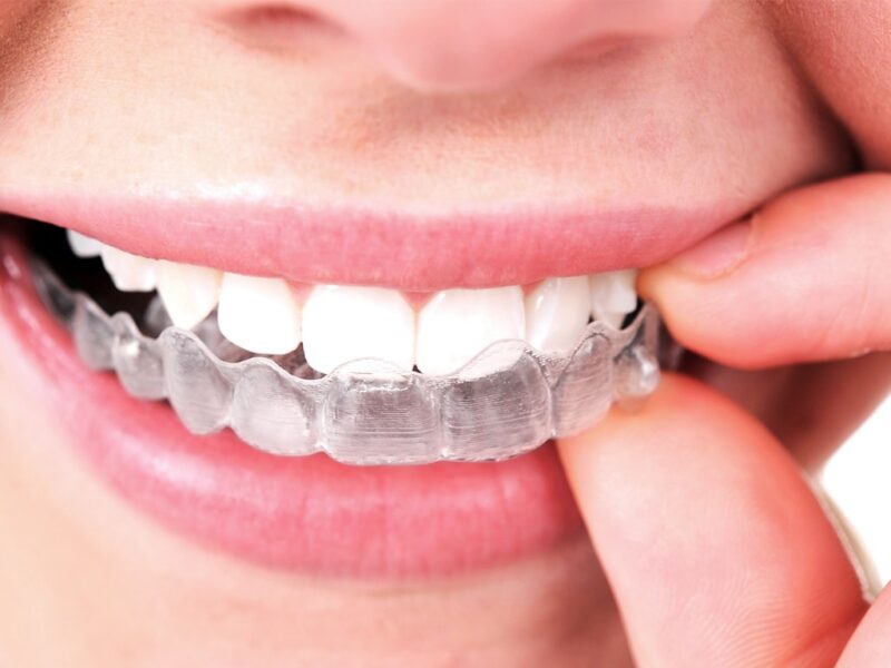invisalign-clear-aligners