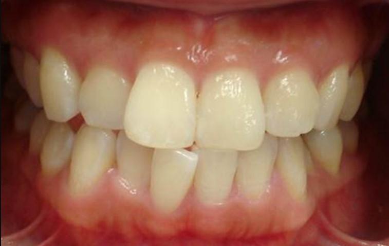 mild-open-bite-even28-clear-aligners