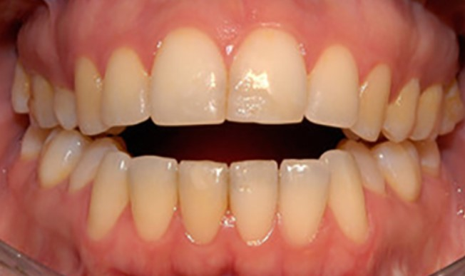 moderate-open-bite-even28-dentist-delivered-aligners