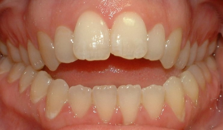 severe-open-bite-braces