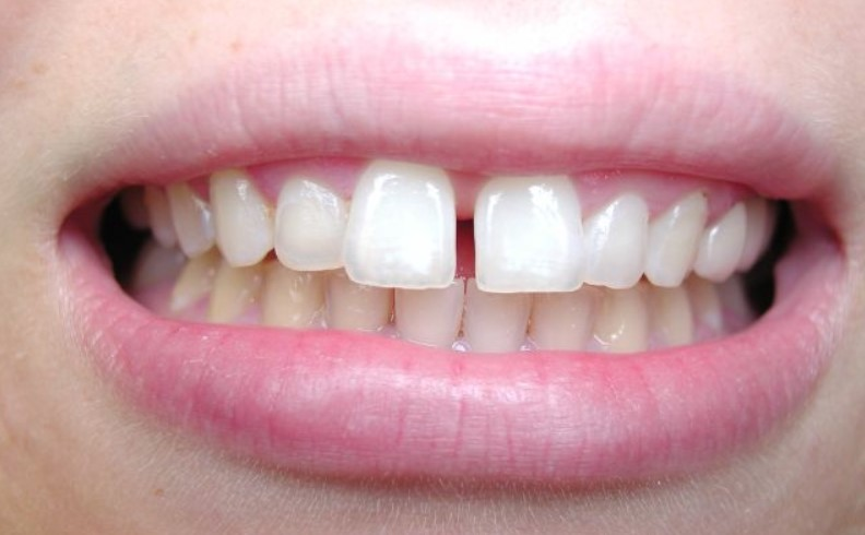 small-gap-even28-at-home-clear-aligners