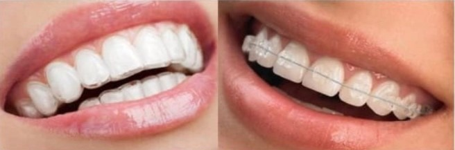 teeth-crowding-braces-versus-clear-aligners