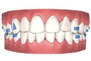 virtual-teeth-movement