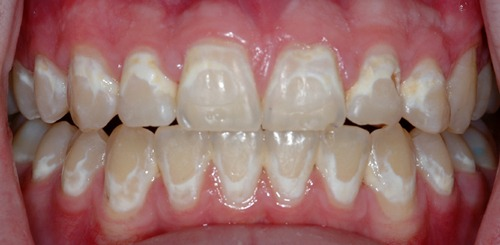 white-spot-lesions-braces-side-effect