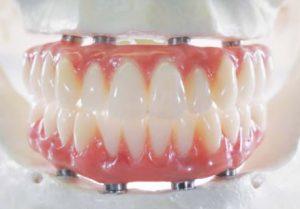 all-on-4-dental-implants