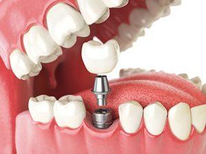 complete-dental-implant