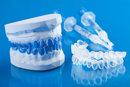 custom-teeth-whitening-tray-treatment