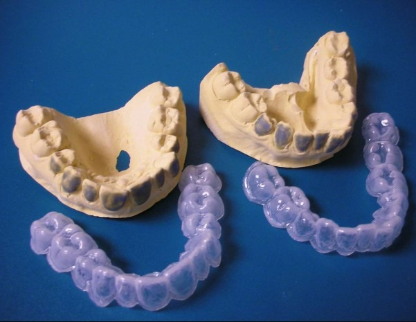 custom-upper-lower-whitening-trays
