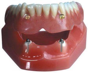 overdentures-snap-on-denture