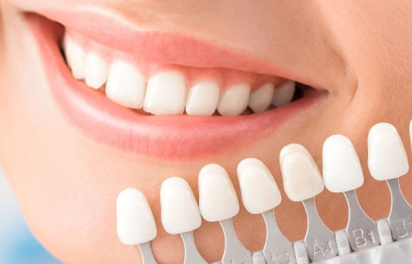 teeth-whitening-trays-instructions