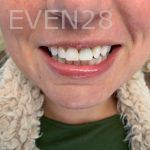 Ali-John-Jazayeri-Dental-Implant-Before-19