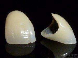 Procelain-Fused-To-Metal-Dental-Crown
