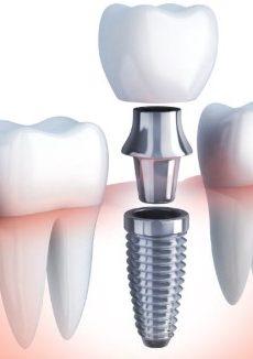 Dental-implant-complete