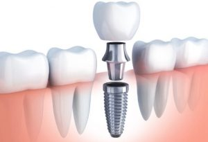 Dental-implant-consult-black-friday
