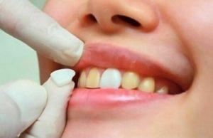 Porcelain-veneer-6-teeth