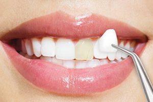 Porcelain-veneer-teeth-whitening