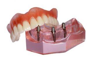 snap-on-denture-4-implants