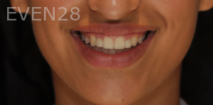 Aria-Irvani-After-Clear-Aligners-10