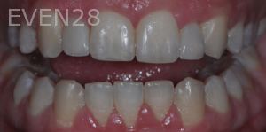Aria-Irvani-After-Clear-Aligners-11