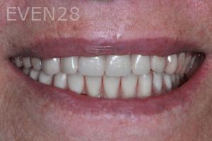 Aria-Irvani-After-Dental-Implants-12