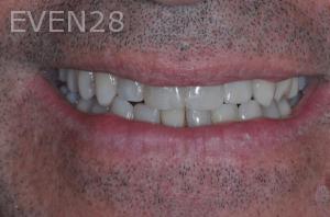 Aria-Irvani-After-Dental-Implants-13