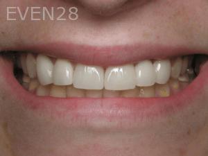 Aria-Irvani-After-Dental-Implants-14
