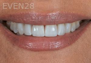 Aria-Irvani-After-Porcelain-Veneer-2