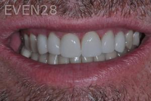 Aria-Irvani-Dental-Crowns-after-2