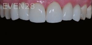 Aria-Irvani-After-Porcelain-Veneer-3b